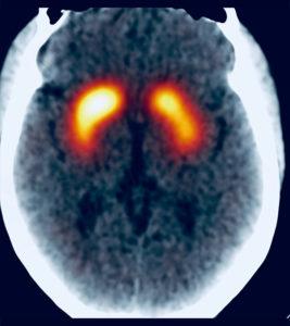 Scintigraphie cérébrale DaTscan – Votre parcours – IMF CCN